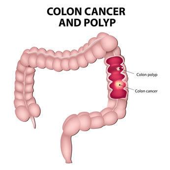 El colon pertenece al aparato digestivo