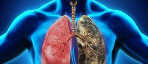 Claves para limpiar y desintoxicar los pulmones de la nicotina.