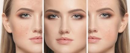 Como eliminar el acne para siempre