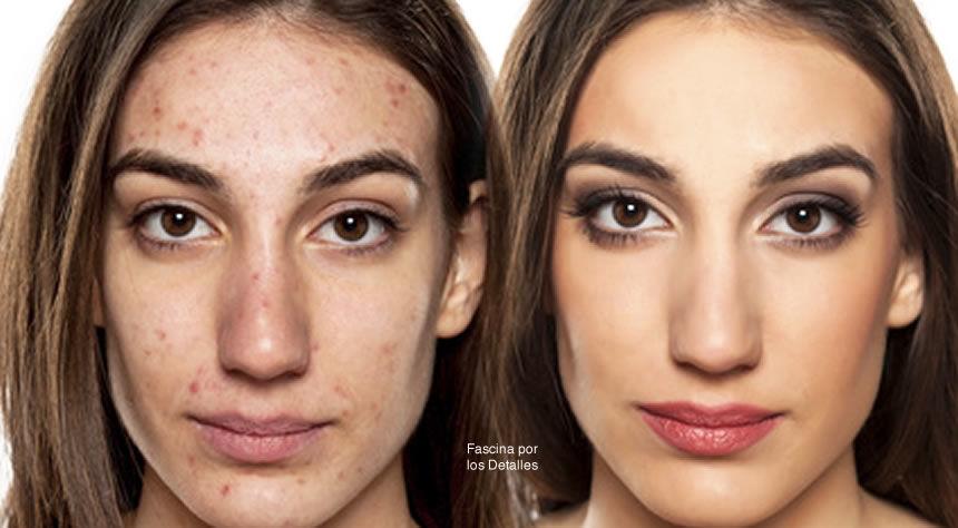 Principales factores que contribuyen al acné.
